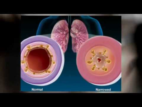 Signs And Symptoms Of Bronchitis Natural Herbs Treatment