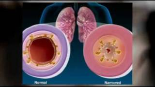 Signs and symptoms of bronchitis. Natural herbs treatment of chronic bronchitis