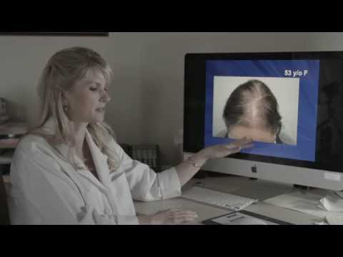 About Male & Female Pattern Thinning Hair & Examples by Dr. Rogers
