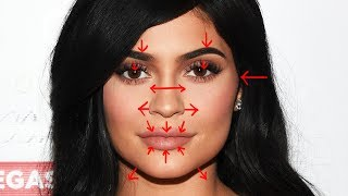 Removing KYLIE JENNER'S Plastic Surgery