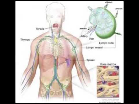 Problema del sistema linfático - YouTube