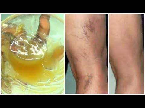 look-what-i-use-on-my-varicose-veins-+-spider-veins,-get-rid-of-varicose-veins-fast-|khichi-beauty