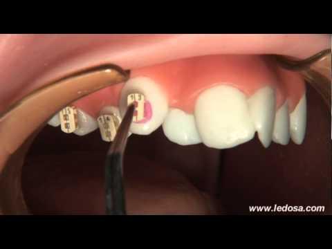 ORTOCERVERA / Ortodoncia: Cementado de Brackets Autoligado Camaleón
