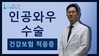 인공와우수술 보험기준 - 건강보험 적응증은?