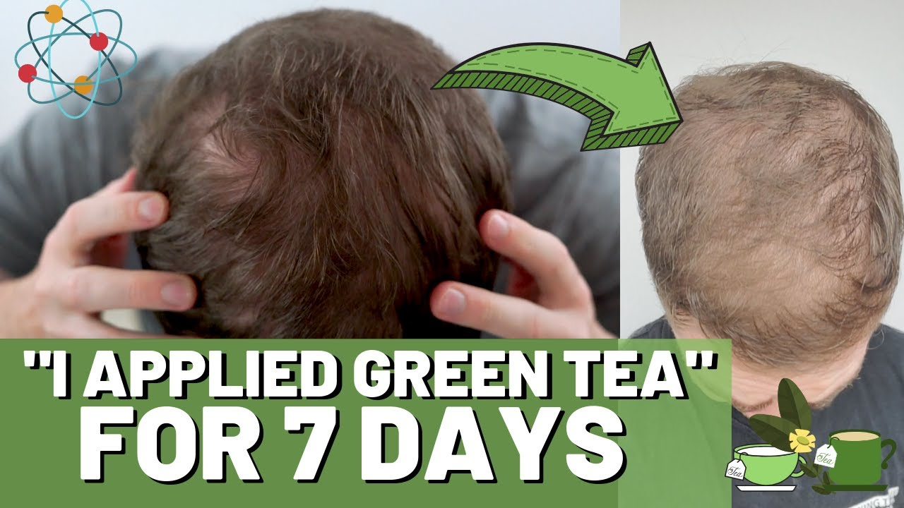 green tea for hair growth: results, benefits & uses - hairguard