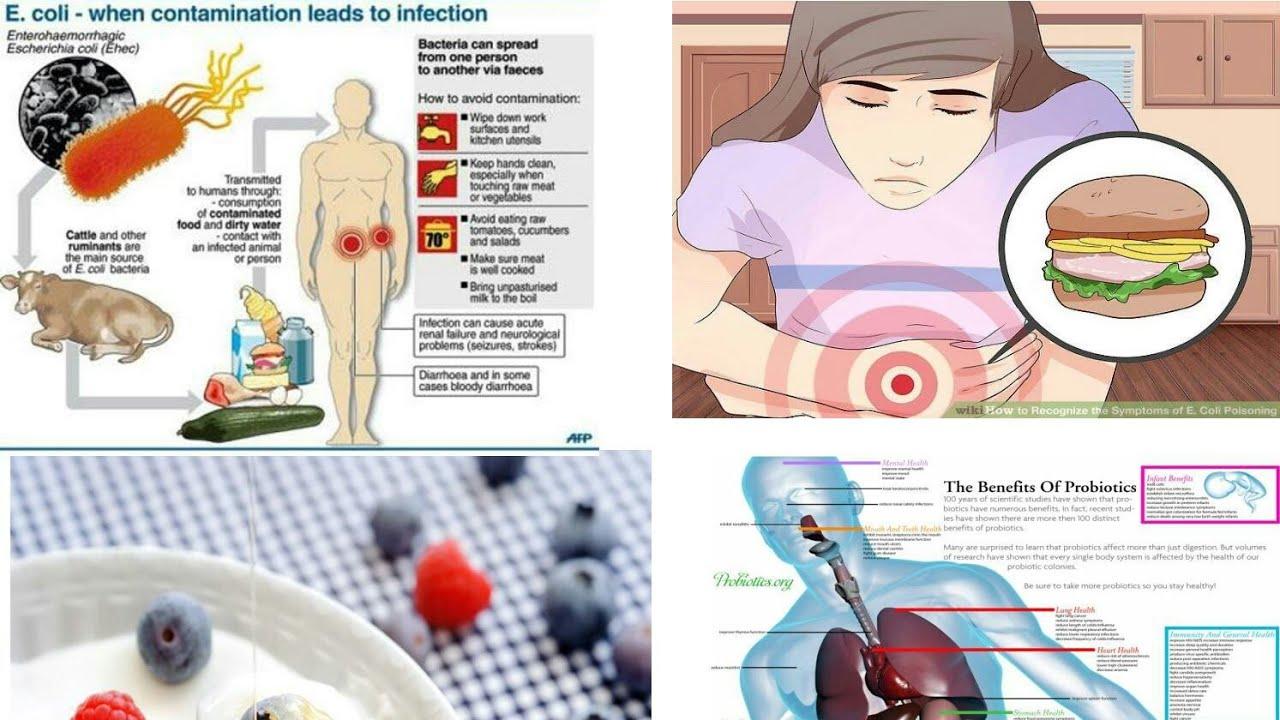 A K T U  biotech 7th sem  (Food biotechnology) part 5