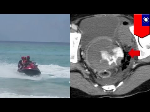 Deadly watersports: Jet ski ruptures woman's uterus with visibility spout spray - TomoNews