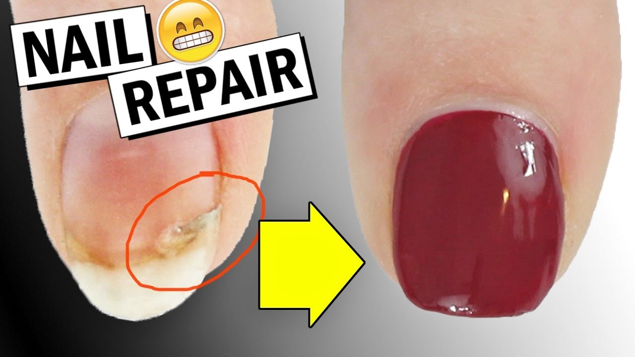 HOW TO REPAIR A BROKEN NAIL + DID IT WORK? | Nailed It NZ - YouTube