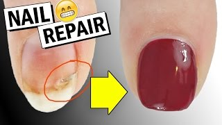 HOW TO REPAIR A BROKEN NAIL + DID IT WORK? | Nailed It NZ