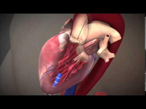 pierderea în greutate după înlocuirea valvei aortice)