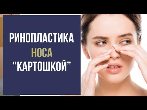 """Ринопластика носа """"картошкой"""": УКОЛЫ или ОПЕРАЦИЯ?"""