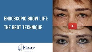 Endoscopic Brow Lift Video | Before & After Brow Lift