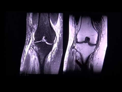Anterior cruciate ligament tear in MR imaging by RadiologieTV