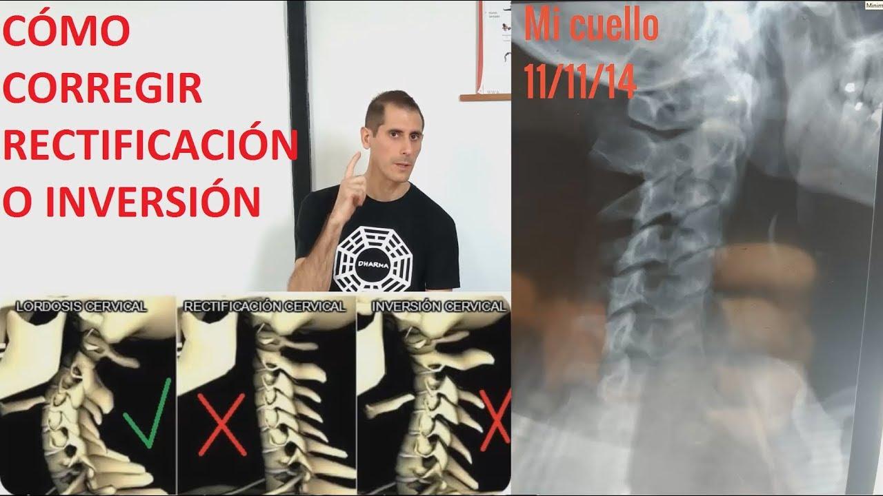 Estiramiento Axial Cervical en Savasana Yoga con Bolster Pelota y Rollo
