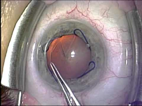 The Fladen Eye & Lasik Center: Malyugin Ring for Small Pupil in ...