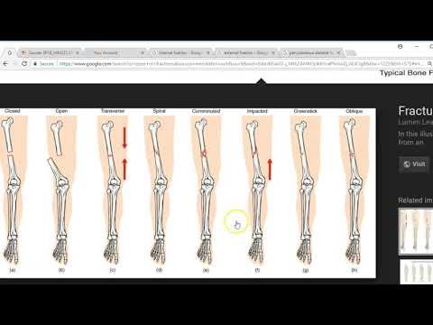 Musculoskeletal Surgery CPT
