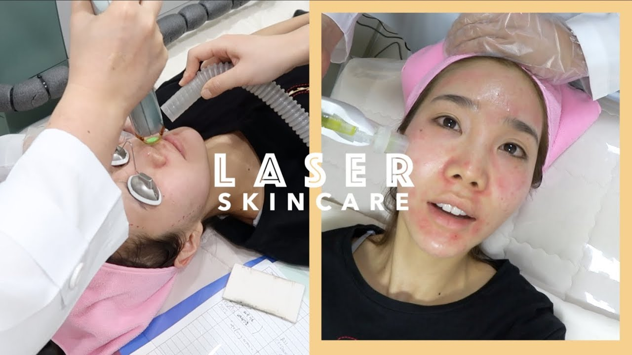 Laser Skincare Treatment In Korea Acne Scars Freckles Facial