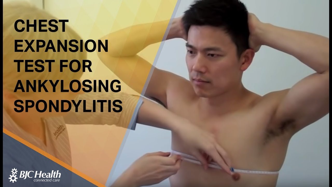 helminthic therapy ankylosing spondylitis