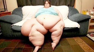 The Most Overweight People on The World