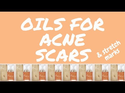 Bio-Oil For Scars (First Impressions) from YouTube · Duration:  5 minutes 7 seconds