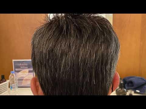 Εφαρμογή Προσθετικής Μαλλιών NEW AGE – No 019673VG (50s)
