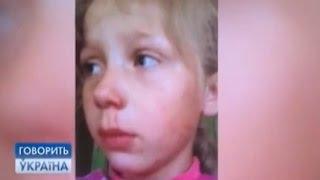 Ребенок в интернате: жертва семьи или соцслужб? (полный выпуск) | Говорить Україна