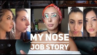 My Rhinoplasty Story (Nose Job) Before + Afters, Post op, recovery
