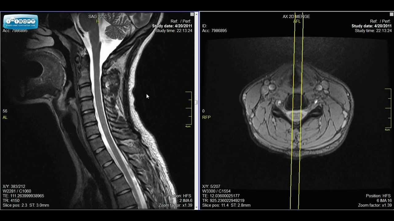 Abnormal Cervical Spine Mri
