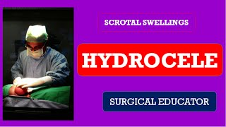 HYDROCELE- Scrotal Swellings