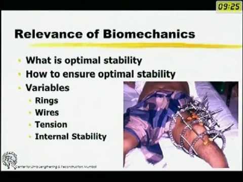 Biomechanics of Ilizarov Fixator