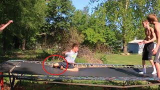 BAD TRAMPOLINE ACCIDENT...