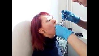 лабрет нижней губы(, 2016-02-13T11:44:20.000Z)