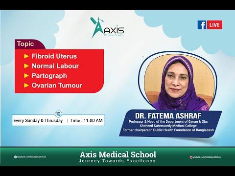 Fibroid Uterus | 2nd Class