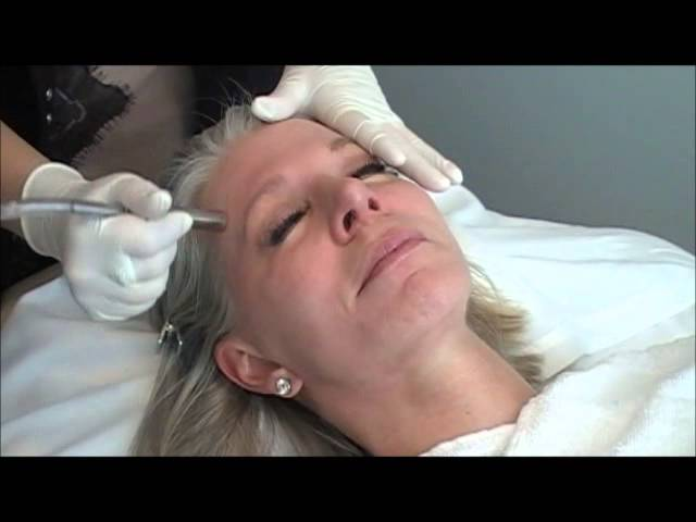 Microdermabrasion with DiamondTome 2