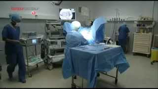 Hysteroscopie operatoire pour fibrome utérin par Dr Jacques Hamou