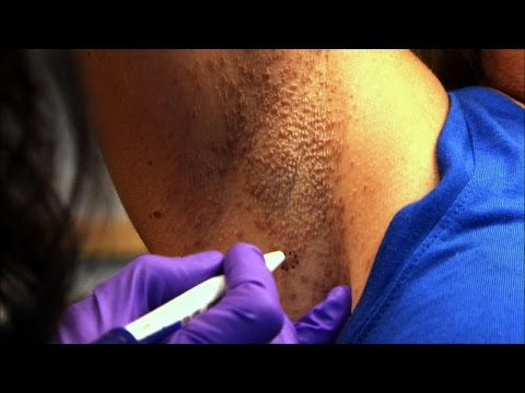 Woman's Armpit Mystery Skin Condition Solved