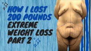 Pre-Op Consultation - Liposuction - Tummy Tuck Procedure - Weight Loss - Dr. Chugay - California