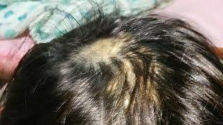 【男女検証】もう円形脱毛症になっても…ひまし油で生えてくるから大丈夫♡Powerful hair growth【ひまし油実験日記】ひまし油効果を検証一人で悩まないで! thumbnail