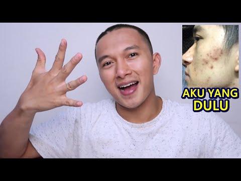 SALEP JERAWAT (APOTEK) PALING AMPUH || Beauty Talk #1.