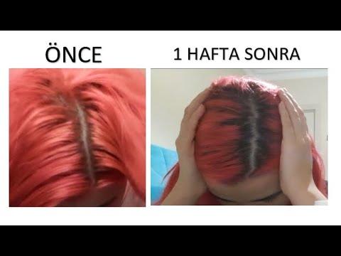 Saçlarımı Nasıl Uzattım? (Öncesi / Sonrası Fotoğraflarıyla) 👩