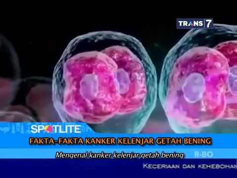 Mengenal Penyakit Kanker Kelenjar Getah Bening Dan Fakta ...