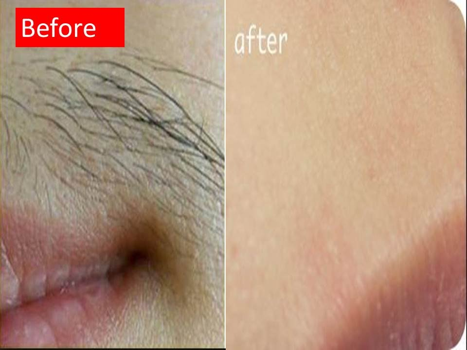 How to remove small facial hair-8697