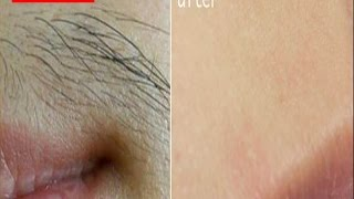 How to get rid of facial hair Naturally Permanently at home,Remove Facial hair Naturally  at Home