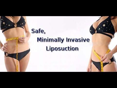 What is The Tumescent Liposuction Technique?  Liposuction Expert Speaks