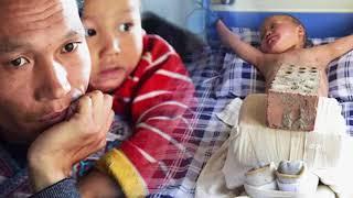 Xót xa chuyện người đàn ông bị vợ bỏ rơi, mỗi ngày dùng 15kg gạch đè lên chân con để chữa bỏng