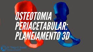 Veja o planejamento 3D de um caso de displasia do quadril.