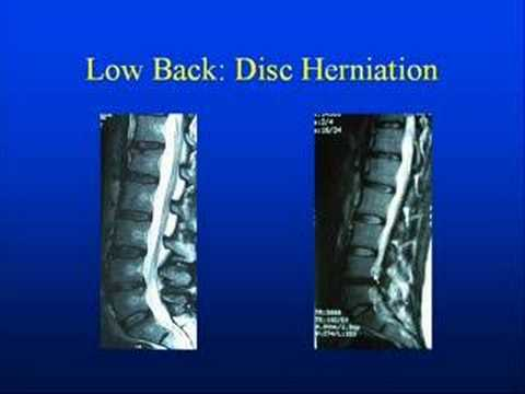 Low Back Anatomy With Pinched Nerves Disc Ruptures Pain Youtube