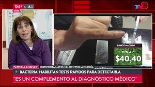 Habilitan test rápido para detectar la bacteria estreptococo