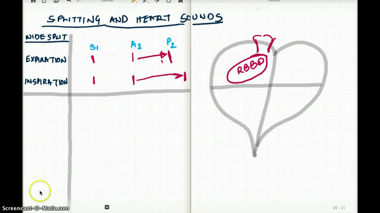Splitting Of The Heart Sounds Youtube