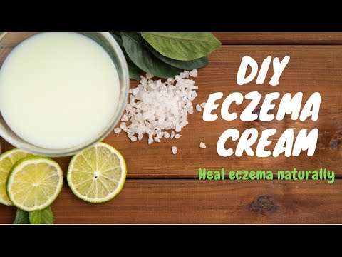 DIY Eczema Cream: Ease itchy skin